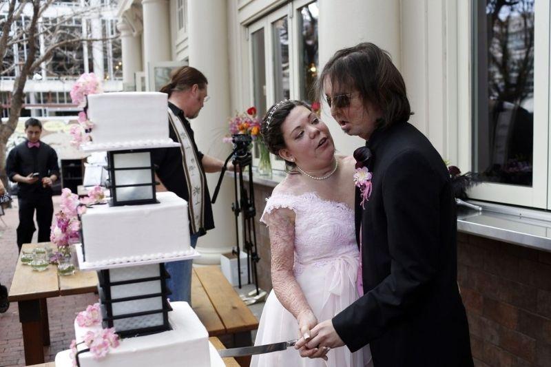 Primeiro transplantado de rosto dos EUA casou-se com vítima de queimaduras 01