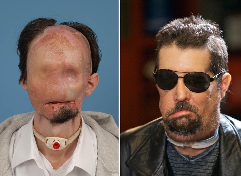Primeiro transplantado de rosto dos EUA casou-se com vítima de queimaduras 02