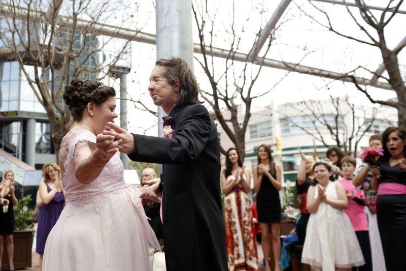 Primeiro transplantado de rosto dos EUA casou-se com vítima de queimaduras 03