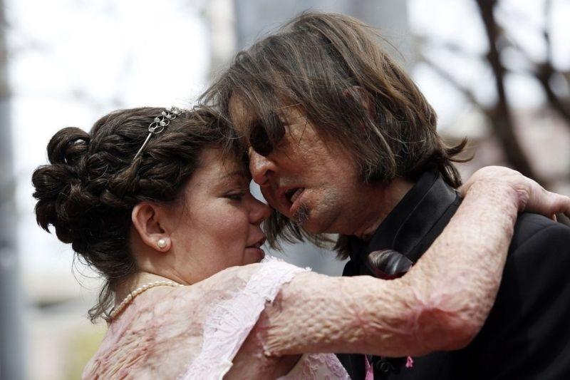 Primeiro transplantado de rosto dos EUA casou-se com vítima de queimaduras 04