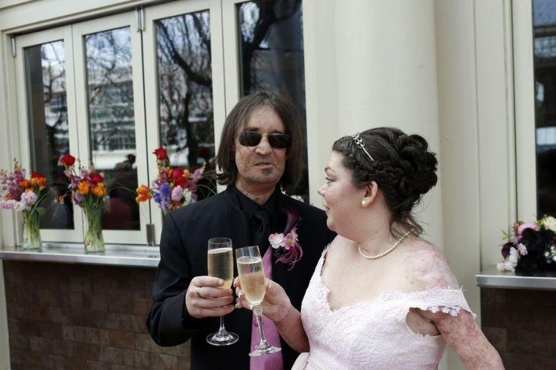 Primeiro transplantado de rosto dos EUA casou-se com vítima de queimaduras 05