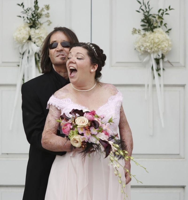 Primeiro transplantado de rosto dos EUA casou-se com vítima de queimaduras 06