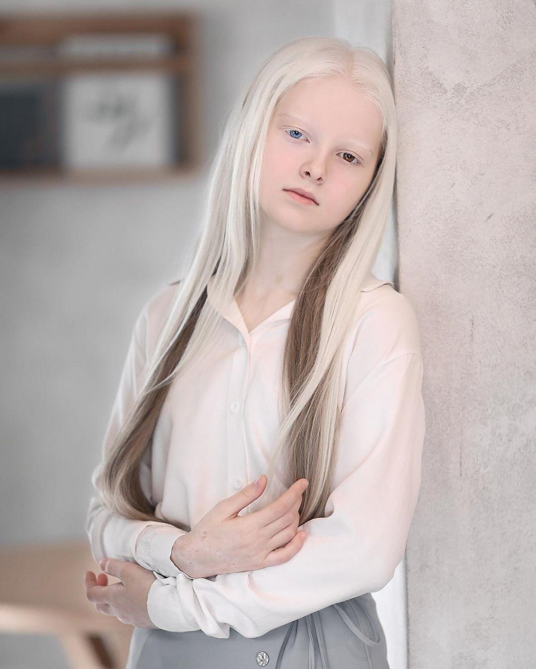Garota chechena atordoa a Internet com sua beleza sobrenatural 07