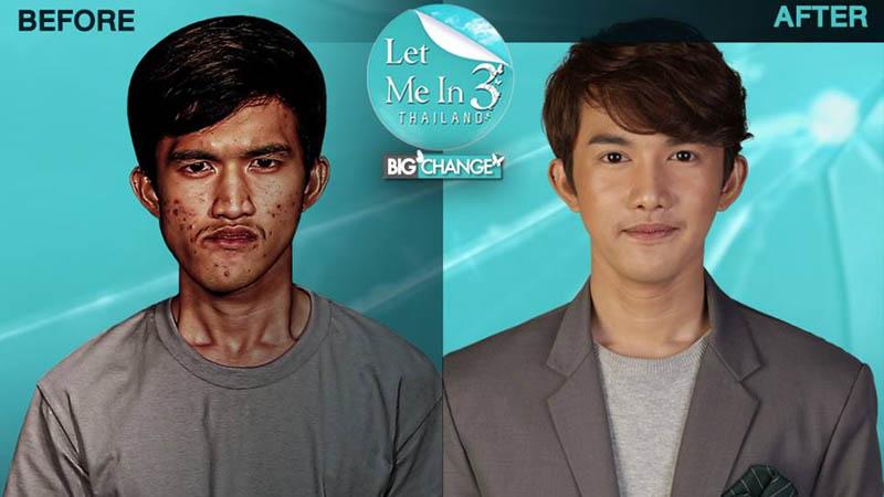 Tailandesa não reconhece seu próprio filho após a cirurgia plástica extrema
