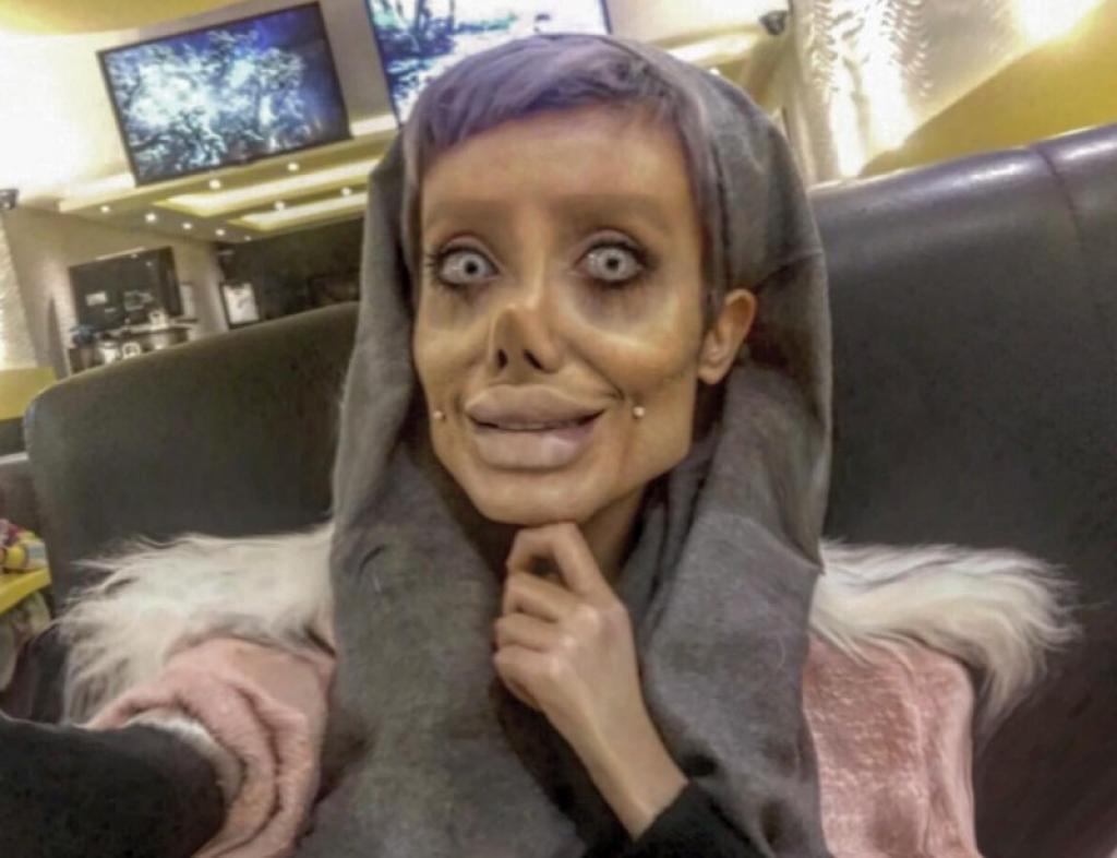 Queria ficar como Angelina Jolie e conseguiu: igualzinha a ela depois de morta e enterrada 22