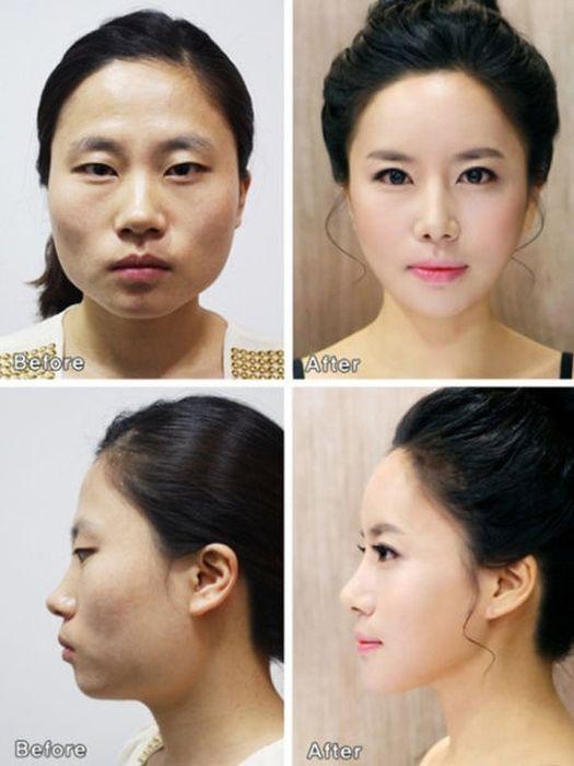 Antes e depois da cirurgia plástica coreana 2 01
