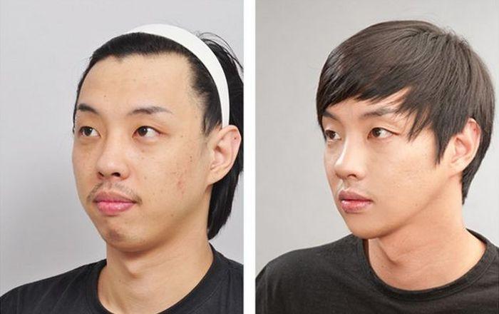 Antes e depois da cirurgia pl�stica coreana 2 02