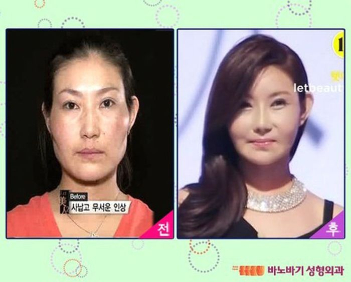 Antes e depois da cirurgia pl�stica coreana 2 03