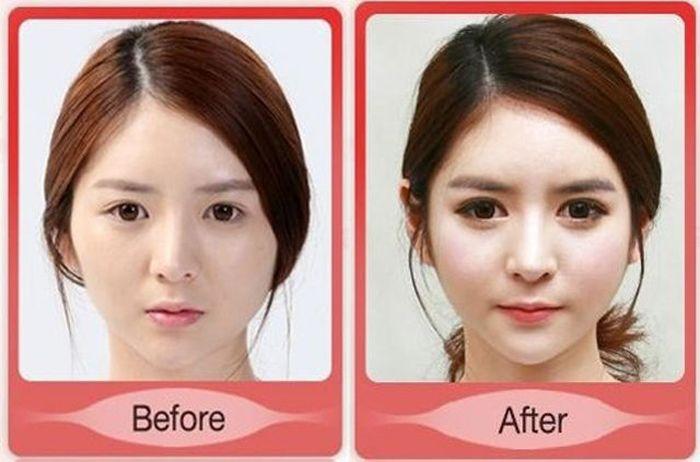 Antes e depois da cirurgia plástica coreana 2 04
