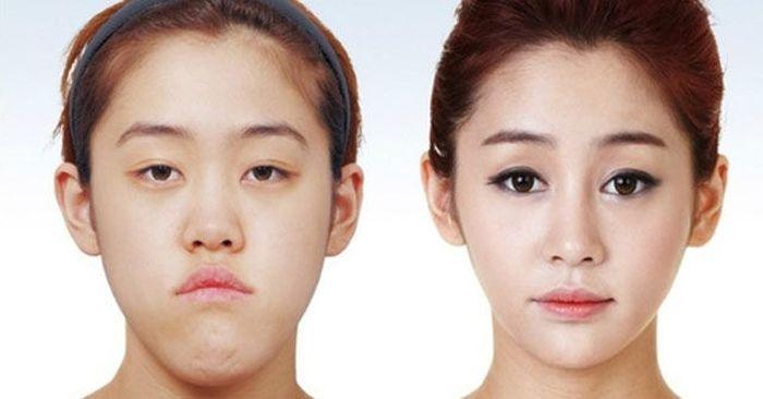 Antes e depois da cirurgia plástica coreana 2 05