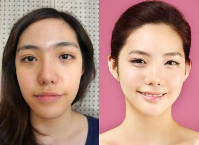 Antes e depois da cirurgia plástica coreana 2 06