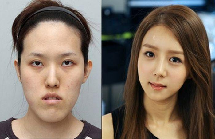 Antes e depois da cirurgia pl�stica coreana 2 07