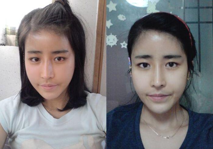 Antes e depois da cirurgia pl�stica coreana 2 08