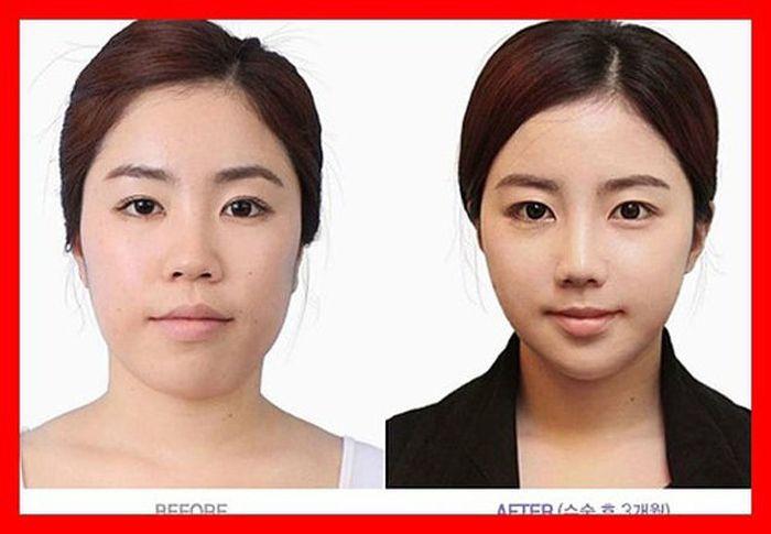Antes e depois da cirurgia plástica coreana 2 09