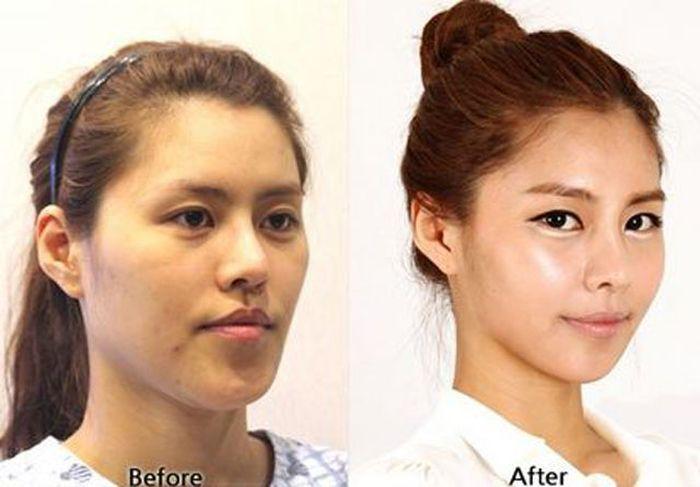 Antes e depois da cirurgia plástica coreana 2 10