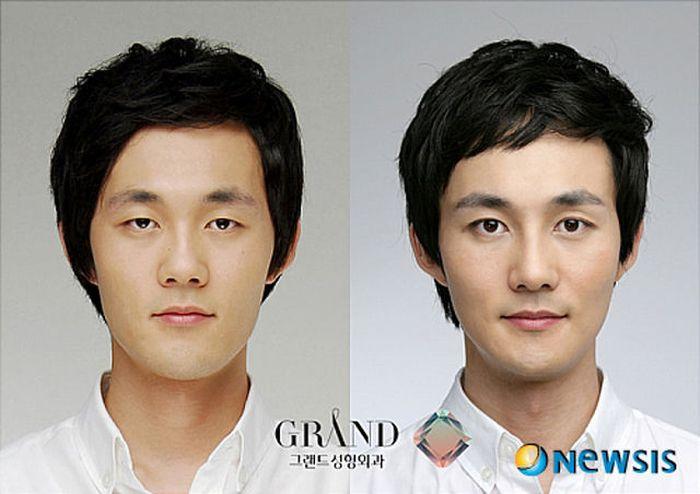Antes e depois da cirurgia plástica coreana 2 11