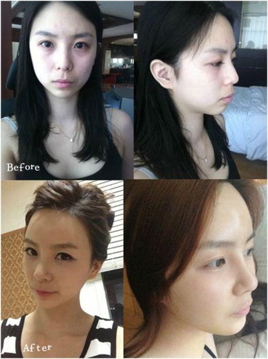 Antes e depois da cirurgia pl�stica coreana 2 12