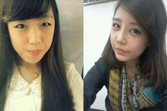 Antes e depois da cirurgia plástica coreana 2 13