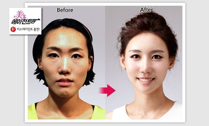 Antes e depois da cirurgia pl�stica coreana 2 14