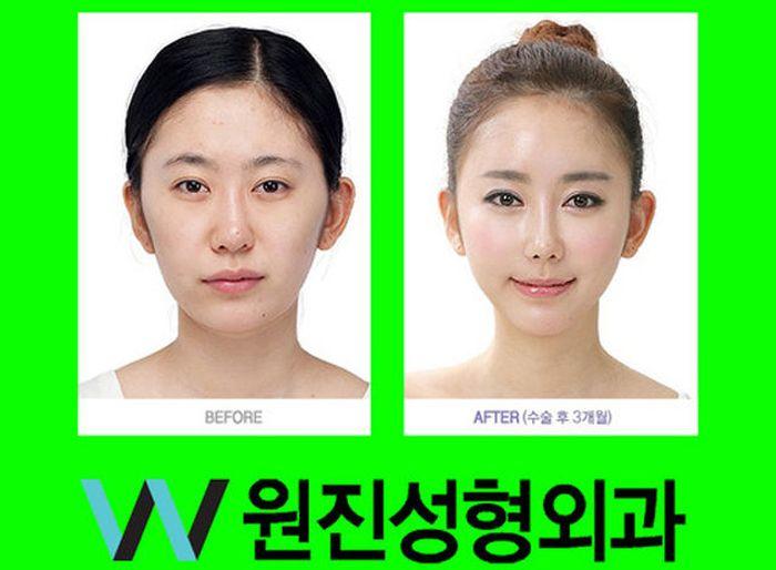 Antes e depois da cirurgia plástica coreana 2 15