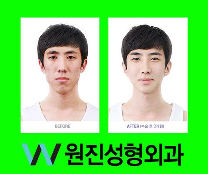 Antes e depois da cirurgia plástica coreana 2 16