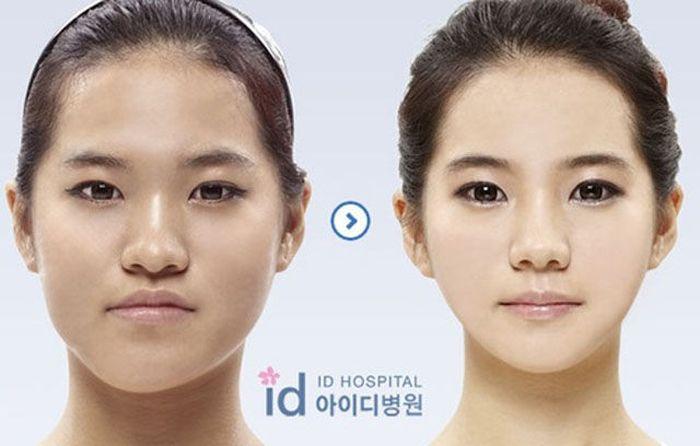 Antes e depois da cirurgia plástica coreana 2 17