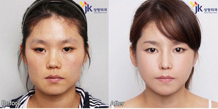 Antes e depois da cirurgia plástica coreana 2 18