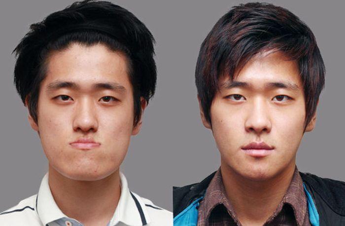 Antes e depois da cirurgia plástica coreana 2 19