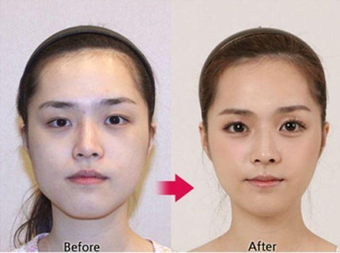 Antes e depois da cirurgia pl�stica coreana 2 20