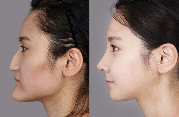 Antes e depois da cirurgia pl�stica coreana 2 21