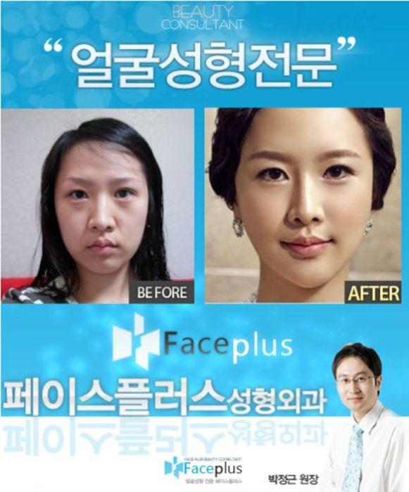 Antes e depois da cirurgia pl�stica coreana 2 22