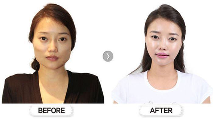 Antes e depois da cirurgia plástica coreana 2 23