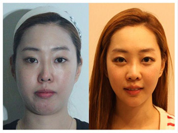 Antes e depois da cirurgia plástica coreana 2 24