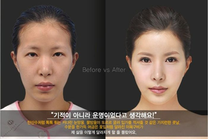 Antes e depois da cirurgia pl�stica coreana 2 25