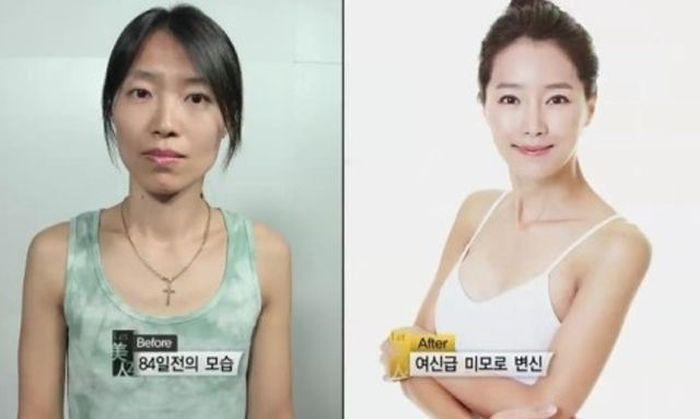 Antes e depois da cirurgia plástica coreana 2 26