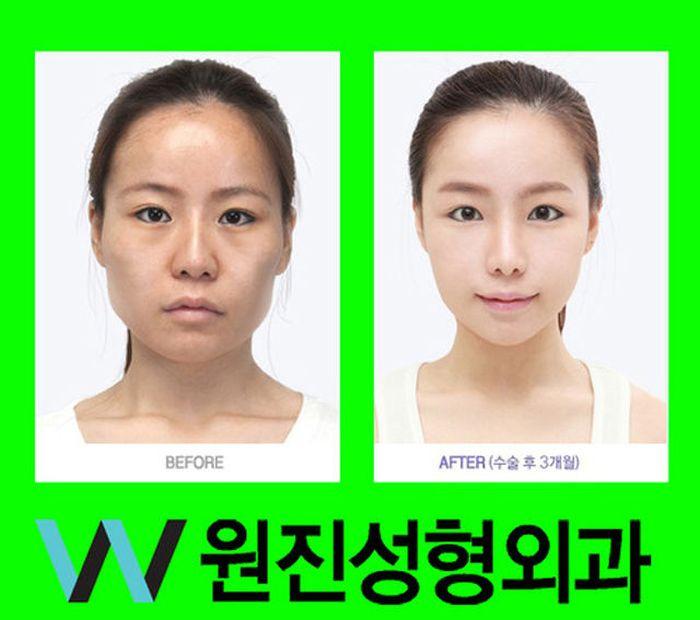 Antes e depois da cirurgia plástica coreana 2 27