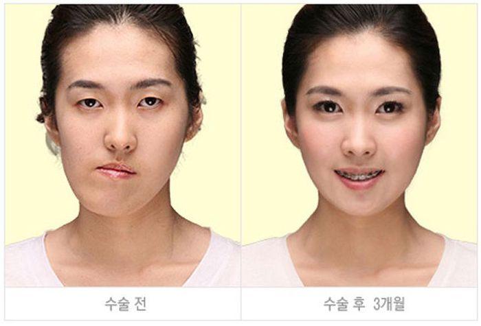 Antes e depois da cirurgia plástica coreana 2 28