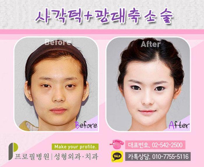 Antes e depois da cirurgia plástica coreana 2 29