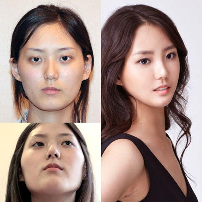 Antes e depois da cirurgia plástica coreana 2 30