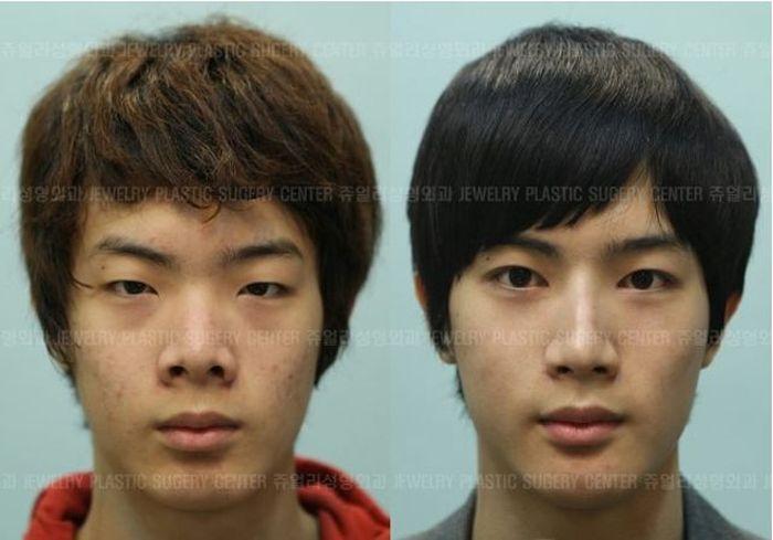Antes e depois da cirurgia plástica coreana 2 31