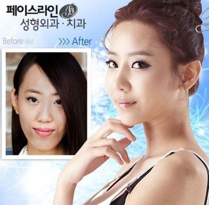Antes e depois da cirurgia plástica coreana 2 32
