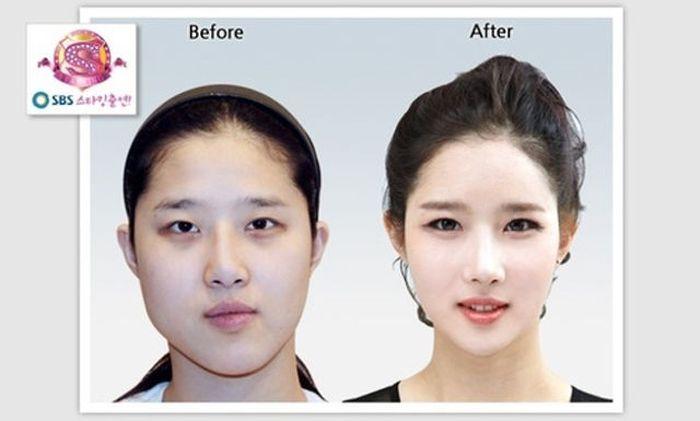 Antes e depois da cirurgia plástica coreana 2 33