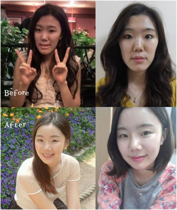Antes e depois da cirurgia plástica coreana 2 34