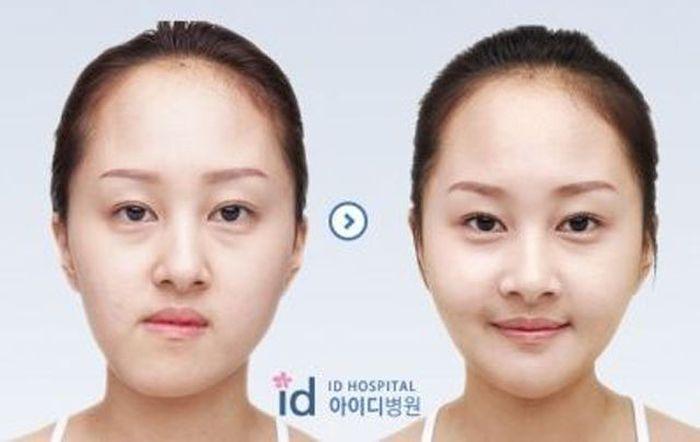 Antes e depois da cirurgia plástica coreana 2 35