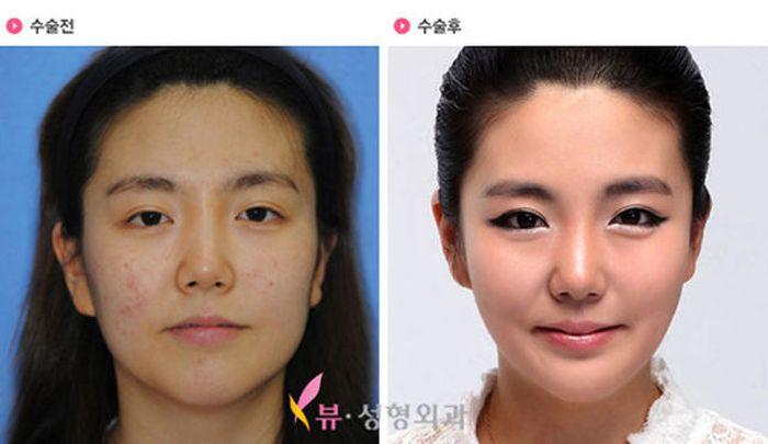Antes e depois da cirurgia plástica coreana 2 36