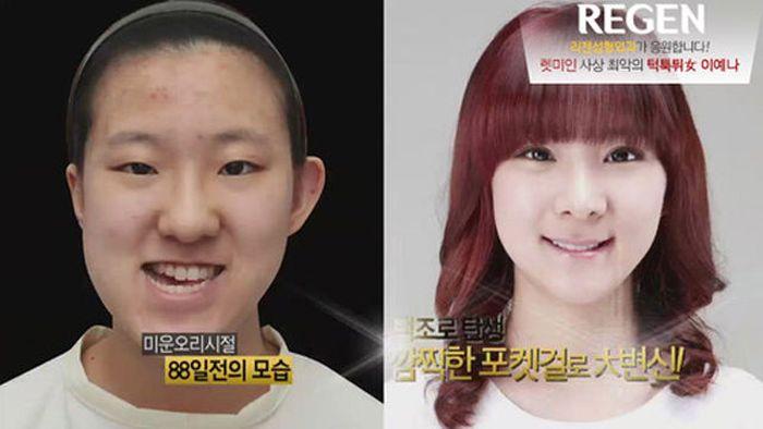Antes e depois da cirurgia plástica coreana 2 37