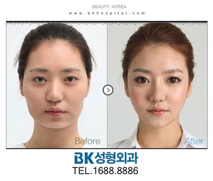 Antes e depois da cirurgia plástica coreana 2 38