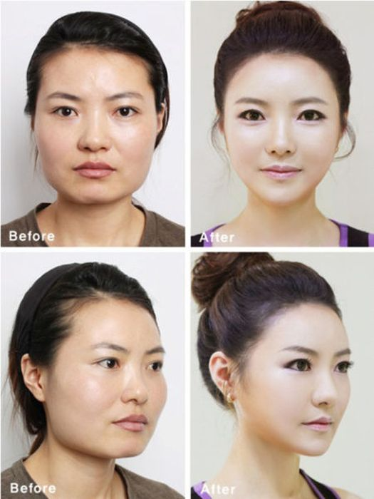 Antes e depois da cirurgia plástica coreana 2 39