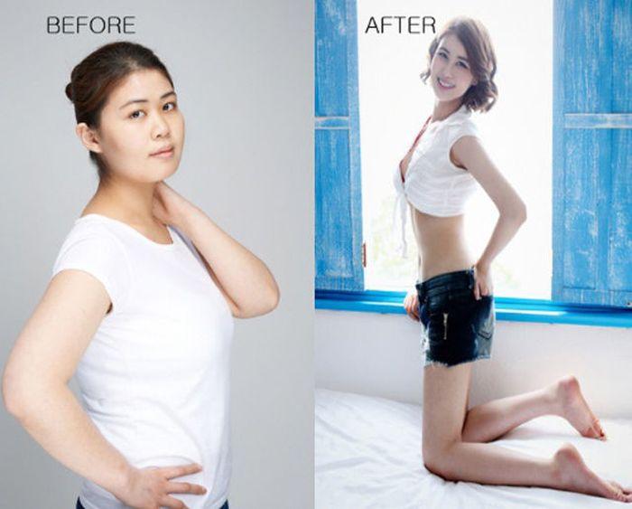 Antes e depois da cirurgia plástica coreana 2 40