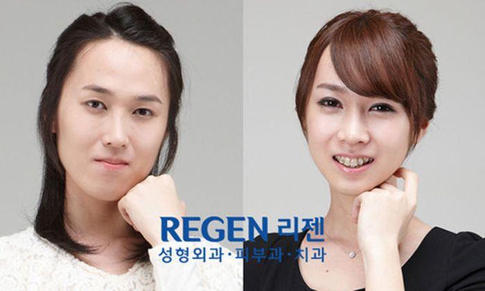 Antes e depois da cirurgia plástica coreana 2 41